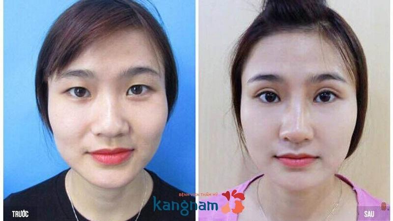 Hình ảnh trước và sau khi thực hiện thẩm mỹ làm đẹp tại Kangnam
