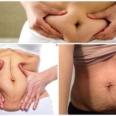 4 cách căng da bụng bị chùng sau sinh tại nhà nhanh gọn