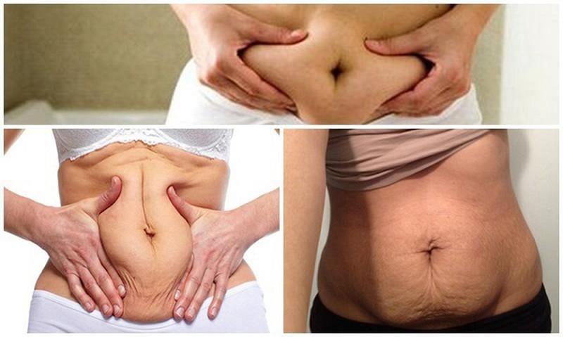 Sau sinh vì sao vùng bụng bị chảy xệ?