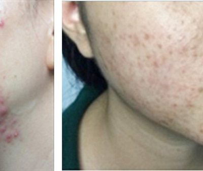 Cách phục hồi da sau khi dùng kem trộn hiệu quả ngay tại nhà