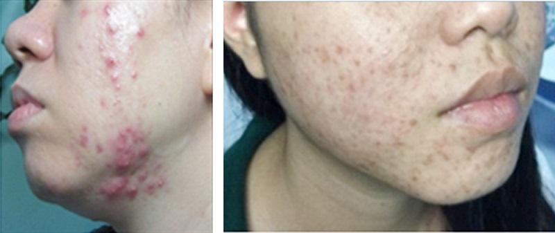 Cách phục hồi da sau khi dùng kem trộn